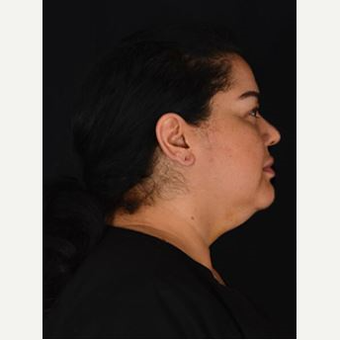 25-34 year old woman treated with Kybella before 3769280