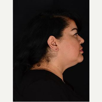 25-34 year old woman treated with Kybella after 3769280