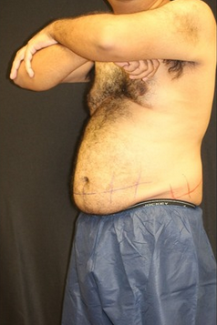35-44 year old man treated for CoolSculpting for abdomen and love handles before 1528278