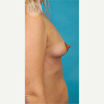 25-34 year old woman treated with Breast Augmentation before 3468761