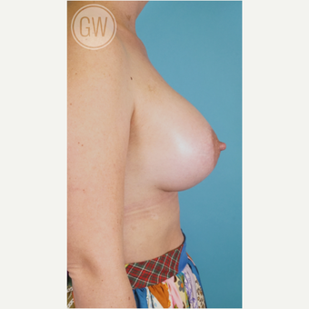 25-34 year old woman treated with Breast Augmentation after 3468761