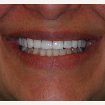 35-44 year old woman treated with Porcelain Veneers after 3507161