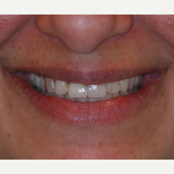 35-44 year old woman treated with Porcelain Veneers before 3507161