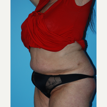 65-74 year old woman treated with SculpSure after 3690204