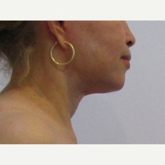 48 year old woman treated with Facelift / Neck Lift after 2550388