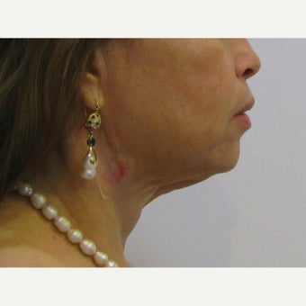 48 year old woman treated with Facelift / Neck Lift before 2550388