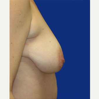 35-44 year old woman treated with Breast Lift before 3519973