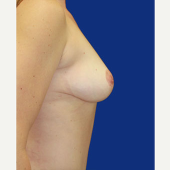 35-44 year old woman treated with Breast Lift after 3519973