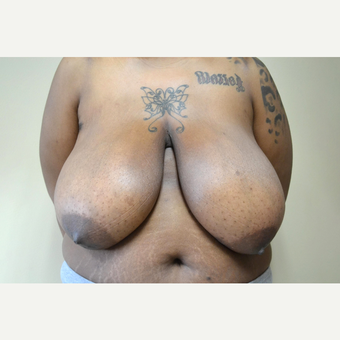 25-34 year old woman treated with Breast Reduction before 3741504