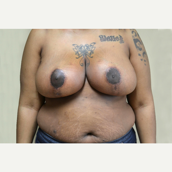 25-34 year old woman treated with Breast Reduction after 3741504