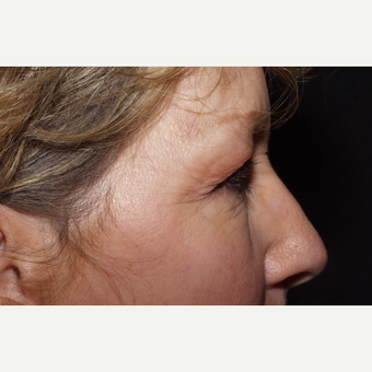 55-64 year old woman treated with Eyelid Surgery before 3481397