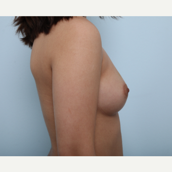 Breast Augmentation before 3425290