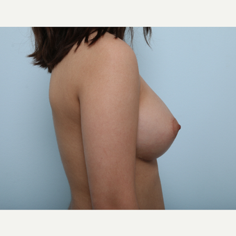 Breast Augmentation after 3425290