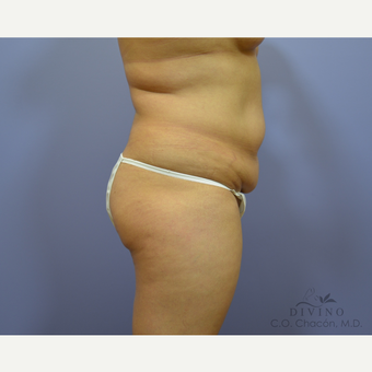 35-44 year old woman treated with Tummy Tuck before 3422071