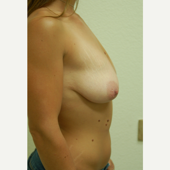 25-34 year old woman treated with Breast Lift before 3310947