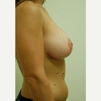 25-34 year old woman treated with Breast Lift after 3310947