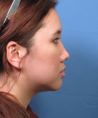 Asian Rhinoplasty Surgery Ethnic Rhinoplasty Example 895291