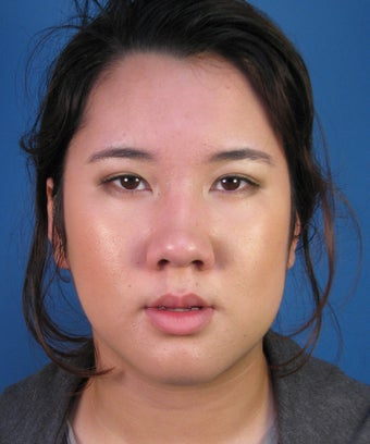 Asian Rhinoplasty Surgery Ethnic Rhinoplasty Example before 895291