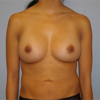 25-34 year old woman treated with Breast Augmentation after 2634741