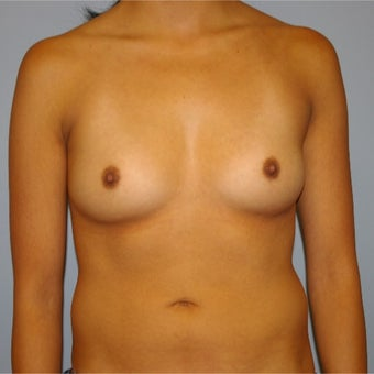 25-34 year old woman treated with Breast Augmentation before 2634741