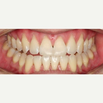 25-34 year old woman treated with Dental Bonding after 2595610