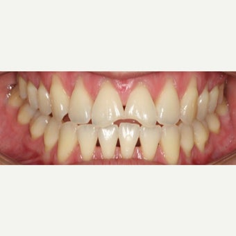 25-34 year old woman treated with Dental Bonding before 2595610