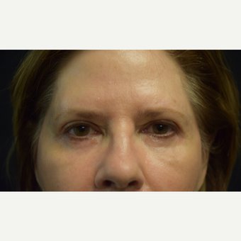 65-74 year old woman treated with Eyelid Surgery after 3102752