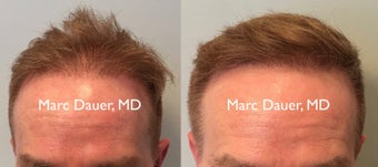 55-64 year old man treated with FUE Hair Transplant before 3377891