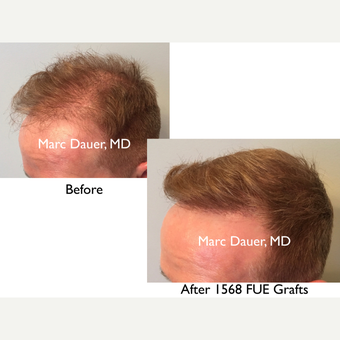 55-64 year old man treated with FUE Hair Transplant after 3377891