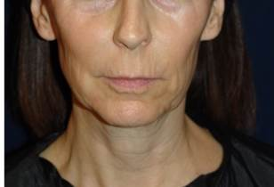 face and neck lift 55 year old