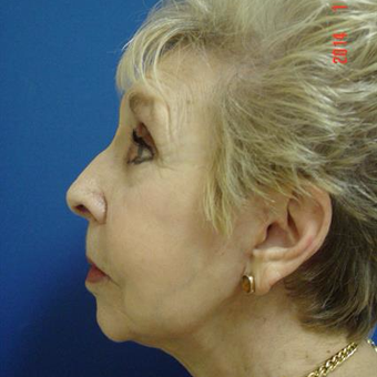 75 and up year old woman treated with Liposuction after 3282396