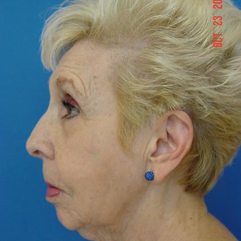 75 and up year old woman treated with Liposuction before 3282396