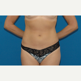 34 year old woman treated with Liposuction after 3266922