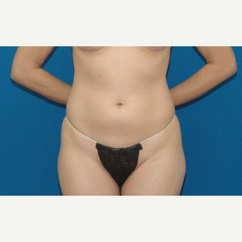 34 year old woman treated with Liposuction before 3266922