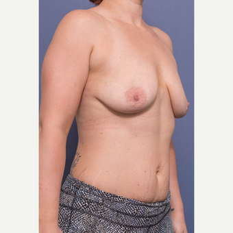 25-34 year old woman treated with Breast Lift with Implants before 3735147