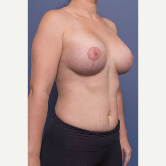 25-34 year old woman treated with Breast Lift with Implants after 3735147