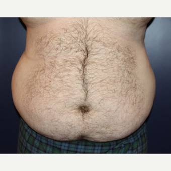 25-34 year old man treated with Male Tummy Tuck before 3093947