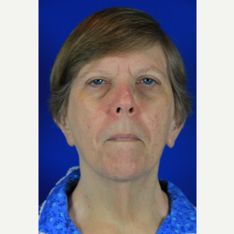 65-74 year old woman treated with Facelift before 3684799