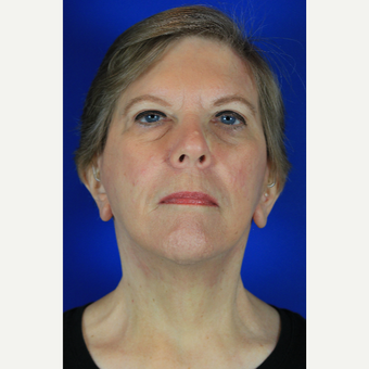 65-74 year old woman treated with Facelift after 3684799