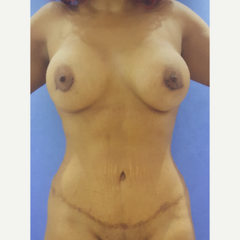 25-34 year old woman treated with Mommy Makeover after 3756485