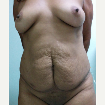 25-34 year old woman treated with Mommy Makeover before 3756485