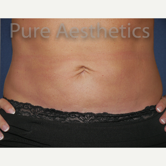 45-54 year old woman treated with CoolSculpting after 3846086