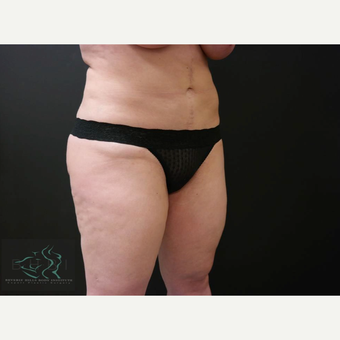 35-44 year old woman treated with Liposuction before 3591165