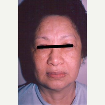 55-64 year old woman treated with Facelift before 3538837