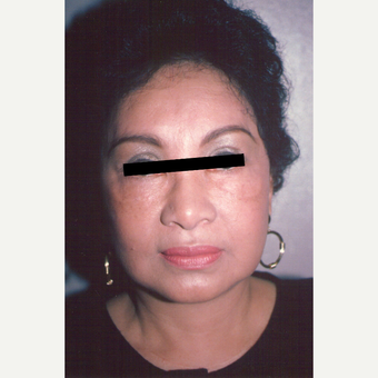 55-64 year old woman treated with Facelift after 3538837