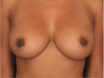 25-34 year old woman treated with Nipple Surgery