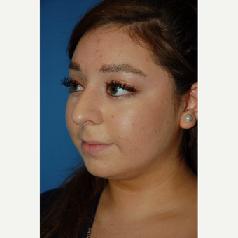 18-24 year old woman treated with Rhinoplasty before 3781973