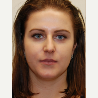 25-34 year old woman treated with Rhinoplasty and permanent Lip Augmentation. before 3742307