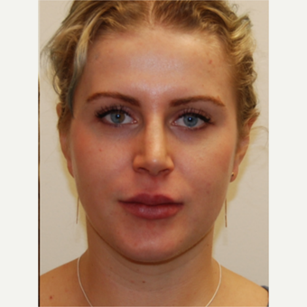 25-34 year old woman treated with Rhinoplasty and permanent Lip Augmentation. after 3742307