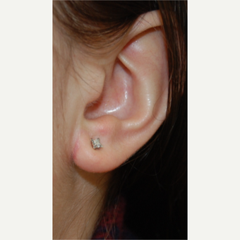 25-34 year old woman treated with Ear Lobe Reduction Surgery after 3508272